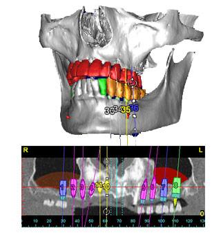 Computergestützte 3D-Diagnostik in der zahnarztpraxis zum genauen Planan von chirurgischen Eingriffen und Zahnimplantaten in unserer Zahnarztpraxis in Essen.