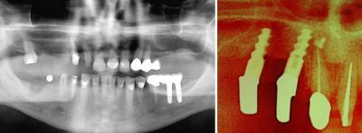 Strahlenarmen digitales Röntgen in unserer Zahnarztpraxis in Essen.