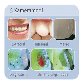 Die 5 Kamera-Modi der intraoralen Kamera in unserer Zahnarztpraxis in Essen: Extraoral, Intraoral, Makro, Diagnosemodus und Behandlungsmodus..